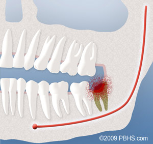 A diagram depicting an infection that occurs after wisdom teeth removal