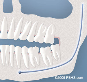 A representation of a wisdom tooth impacted by soft tissue
